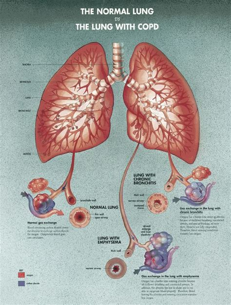 blogger lung normal lung vs copd http www omegaxl com blog copd omega