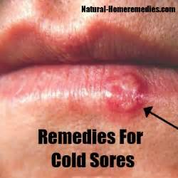 home remedy cold sore cold sore vs canker sores pictures get rid of cold sore