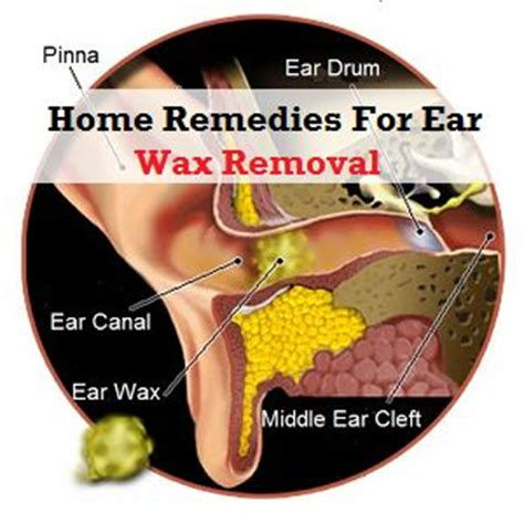 23 best images about 05 ear on health you