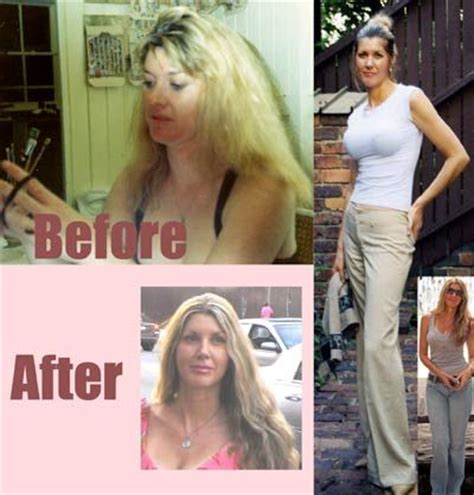 Vegan Detox Results by Vegan Transformation Cleo Before Diet At 27