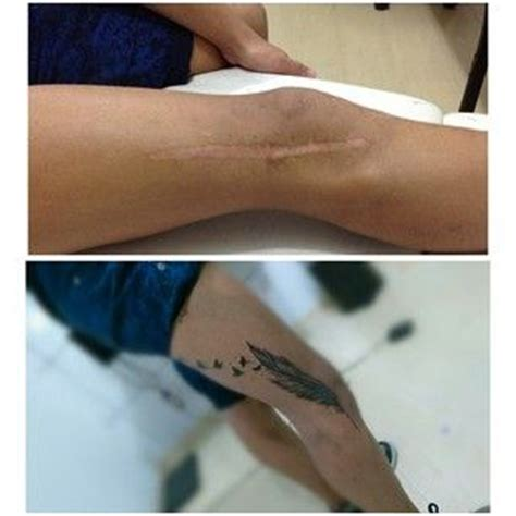 medical tattooing for scars 21 amazing tattoos that done an