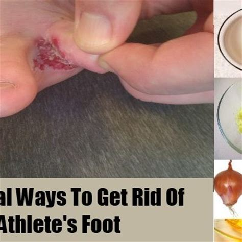 how to get athletes foot out of shoes how to get athletes foot out of shoes 28 images how to
