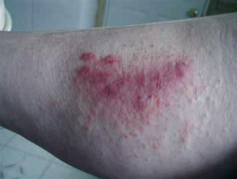 poison oak rash pictures