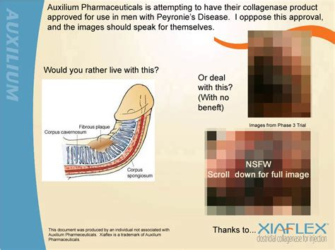 auxilium collagenase xiaflex for peyronies disease