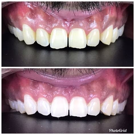 teeth whitening cost  india quora