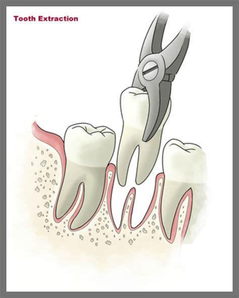 tooth extraction tooth extraction