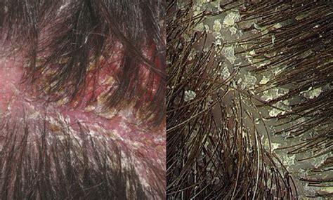 has dandruff image gallery scalp dandruff