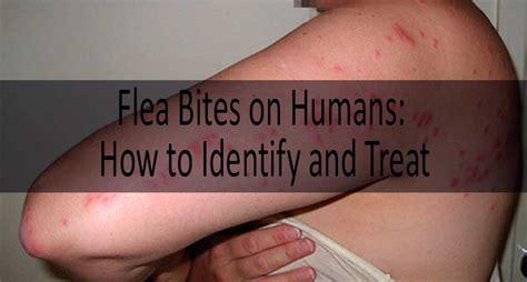 flea bite  human flea bites  mosquito bites  bed bug bites