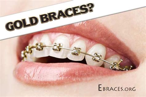 different color braces you don t to be a genius to choose braces colors