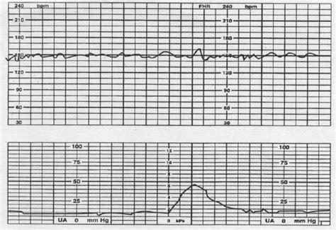 fetal parameters obstetrics medbullets step