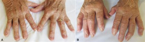 Tofacitinib Also Search For Advances In Rheumatoid Arthritis The Journal Of Australia