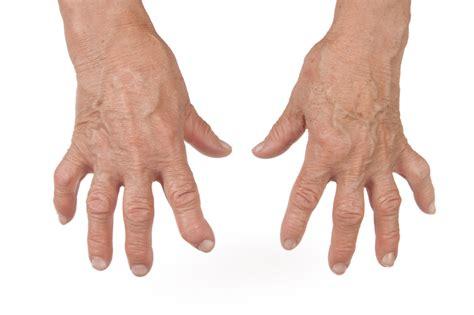 reuma test if you rheumatoid arthritis drink these 5 restorative