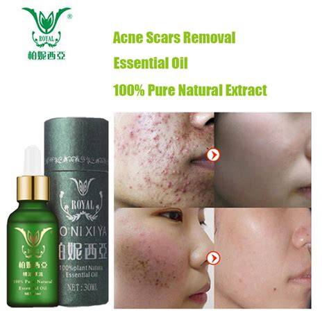 aliexpress com buy scar removal lavender essential oil face care essential oil acne scar spots removal skin care