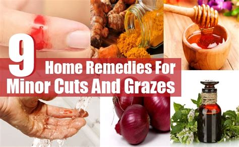 9 top home remedies for minor cuts and grazes diy health