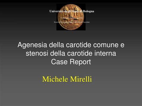 stenosi carotide interna ppt agenesia della carotide comune e stenosi della