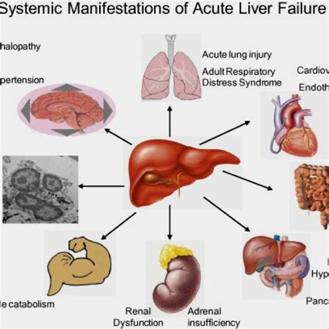 is light bad for your liver http fattyliverdisease co liver failure stages html the
