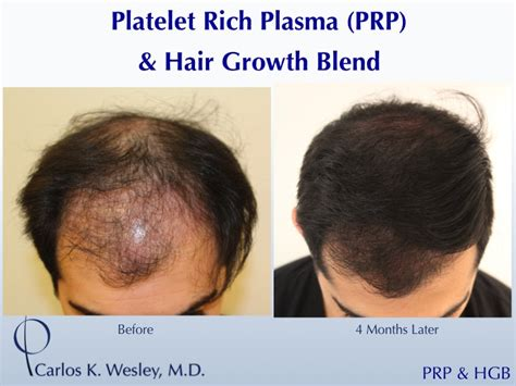 can platelet rich plasma stop hair loss and grow new hair new topical formulas producing results without side