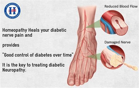 diabetes the real cause and the right cure books get best treatment for diabetic neuropathy