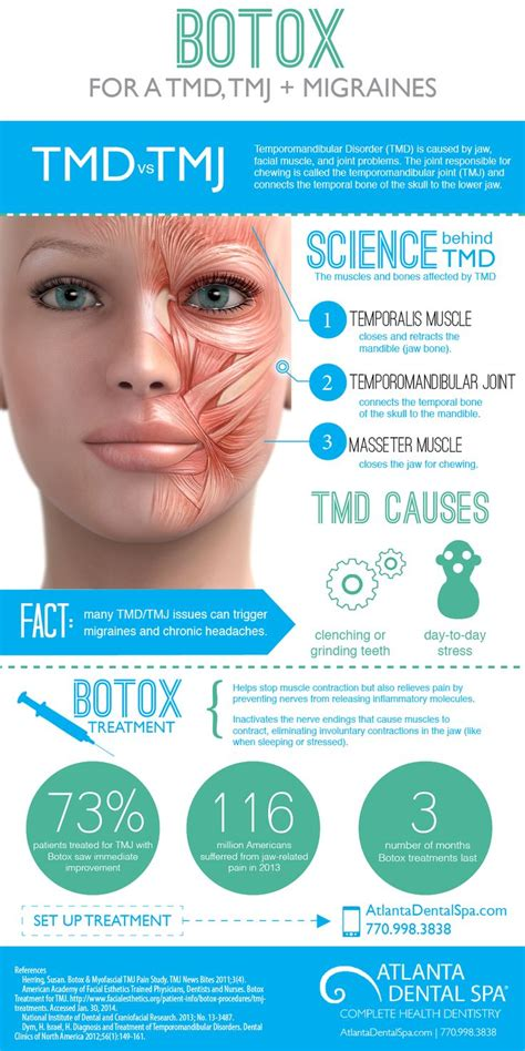 botox injection for migraines diagram 54 best images about beautox on botox