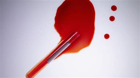 Blood In Stool Fissure by Test Dna Fetale E Amniocentesi Le Differenze Starbene
