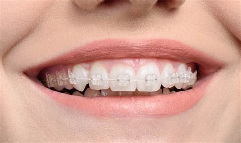 braces colors for teeth best electric toothbrushes for braces in 2018