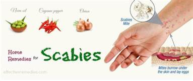 scabies home remedies top 29 home remedies for scabies treatment in humans