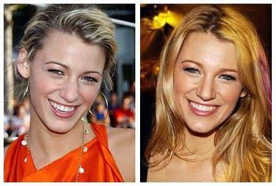 blake scarlett gisele and more celebs plastic surgery blake lively plastic surgery before and after