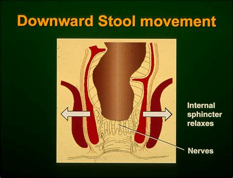 Stool Leakage Causes by Fecal Incontinence Abl