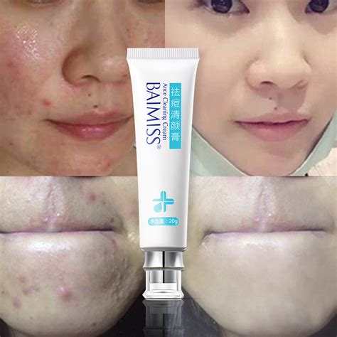 face tanning l acne acne cleaning cream skin care remove repair comedone