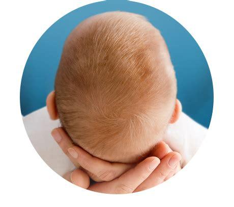schuppen baby milchschorf kopfgneis erkennen und behandeln loyon 174