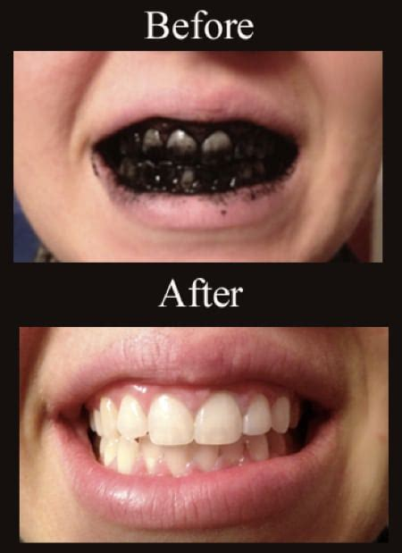 the best way to whiten your teeth improved aging