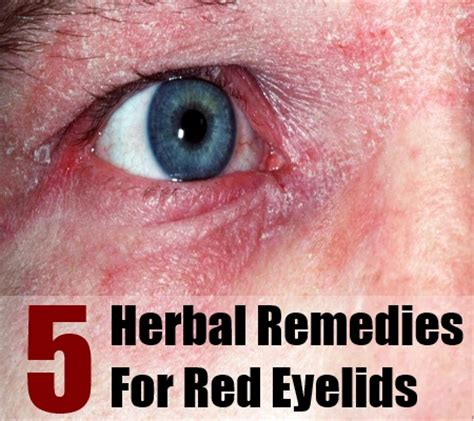 to treat eyelids with herbs home remedies