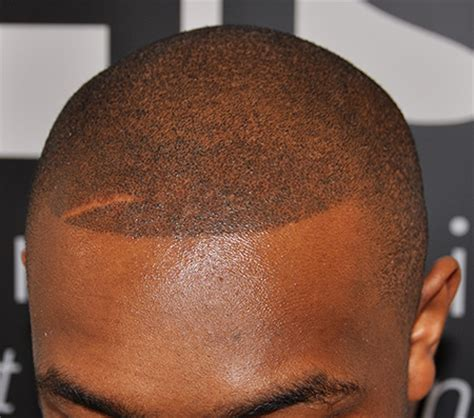 receeding hairline afro the best hair loss treatment for black men his hair clinic