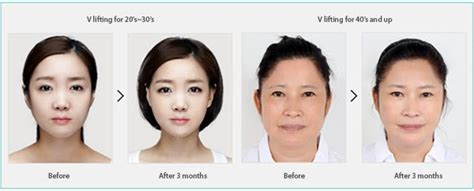v shape jaw surgery an attractive v shape jaw line