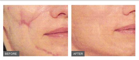 fraxel fraxel laser sydney keloid scars treatment