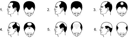 male pattern baldness quiz men s hair loss treatment test hair loss solutions for men