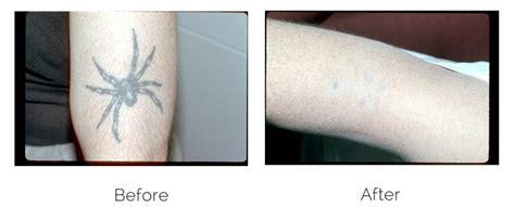 laser tattoo removal philadelphia laser procedures philadelphia pa dermatology