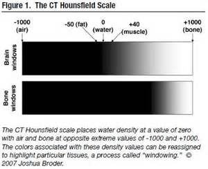 Shades Of Grey Colors principles of interpretation of non contrast head ct