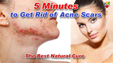 How To Get Rid Of Acne Scars by Get Rid Of Acne Scars