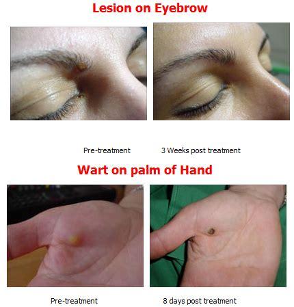 wart skin tag plantar removal cryotherapy colorado
