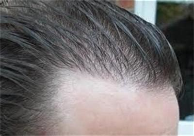 lace hair lines for men custom 100 human hair system for men toupee hairpiece