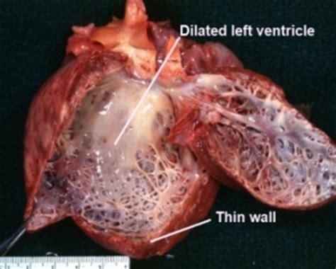 dilated cardiomyopathy in dogs dilated cardiomyopathy