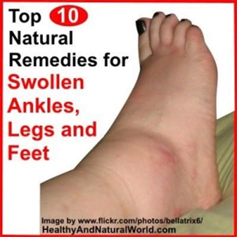 what to do for swollen feet after c section top 10 natural remedies for swollen ankles legs and feet