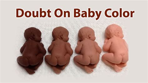 baby skin color doubt on baby s skin tone kkma