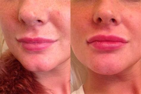 remedy fr cleft chin aesthetic treatments clinic newcastle lip enhancement