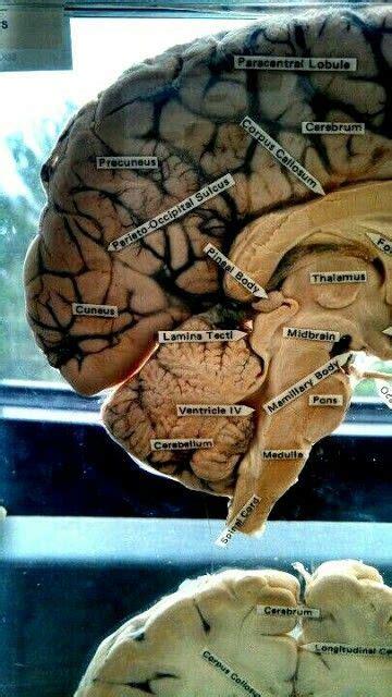 imagenes reales cerebro humano anatom 205 a partes cerebro humano con im 193 genes reales http