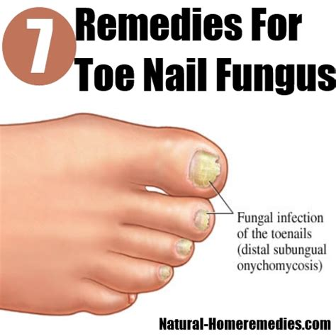 top 7 home remedies for toe nail fungus how to cure toe