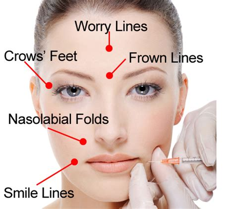 botox injections do you really know botox let s talk beauty and wellness