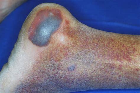 letto da decubito piaga o ulcera da decubito una frequente patologia dei