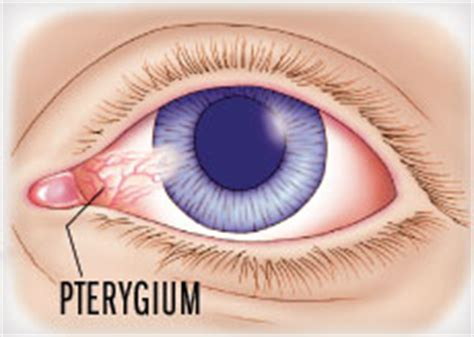 Berapa Harga Walatra Sehat Mata biaya operasi pterigium walatra sehat mata